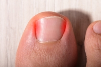 Why Is My Toenail Ingrown?